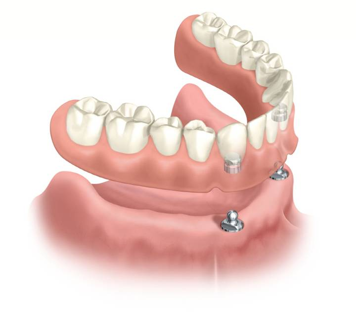 2 implants Overdenture cost US$2900