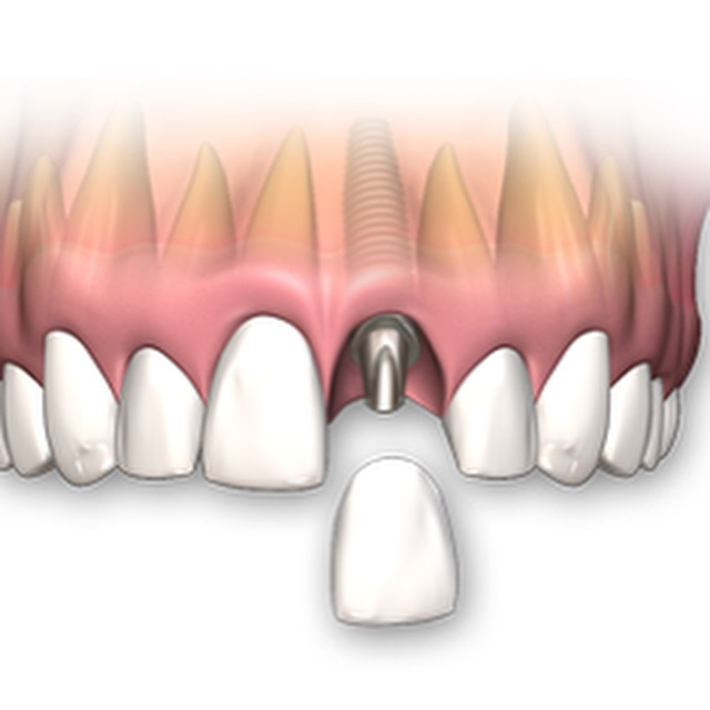Costs of a Single Tooth Dental Implant US$1100.