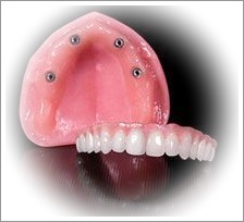 4 Implants Removable Overdenture Cost US$5300