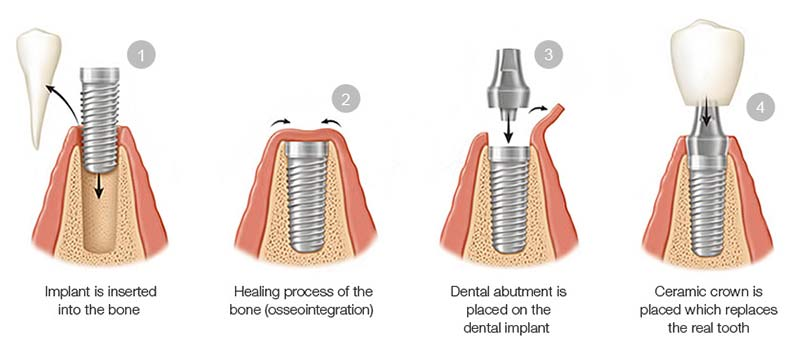 Dental Implants Steps