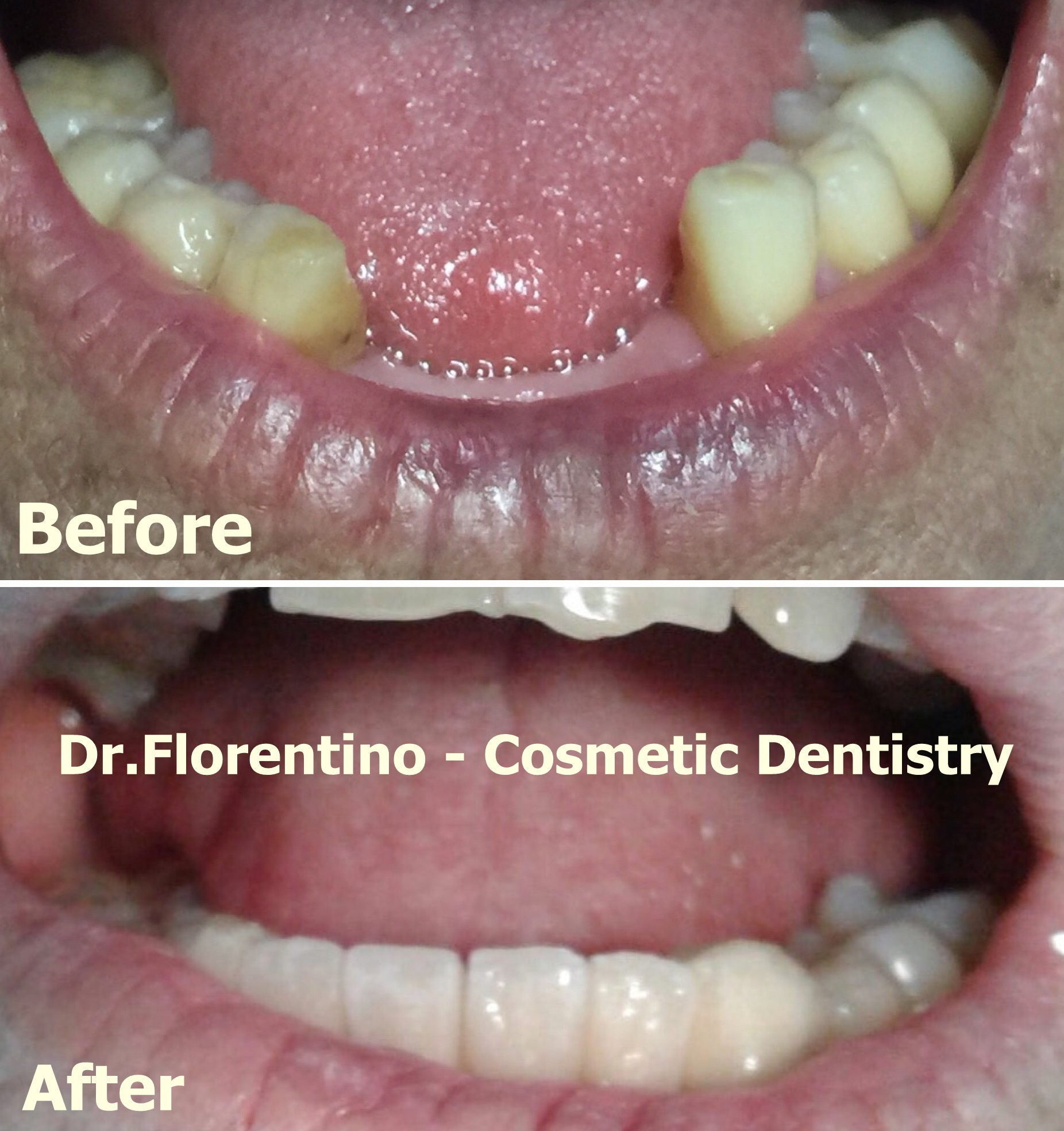 Dental Implants Cost Guide In The Dominican Republic